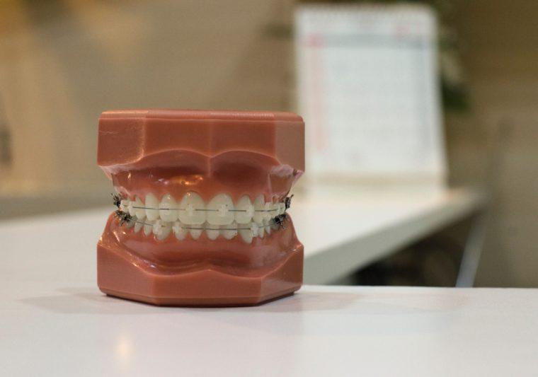 歯のマネキン